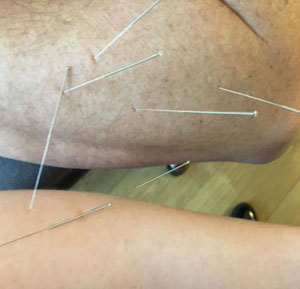 Dry Needling for the Elbow
